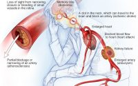 High blood pressure dangers: Hypertension's effects on your body - Mayo  Clinic