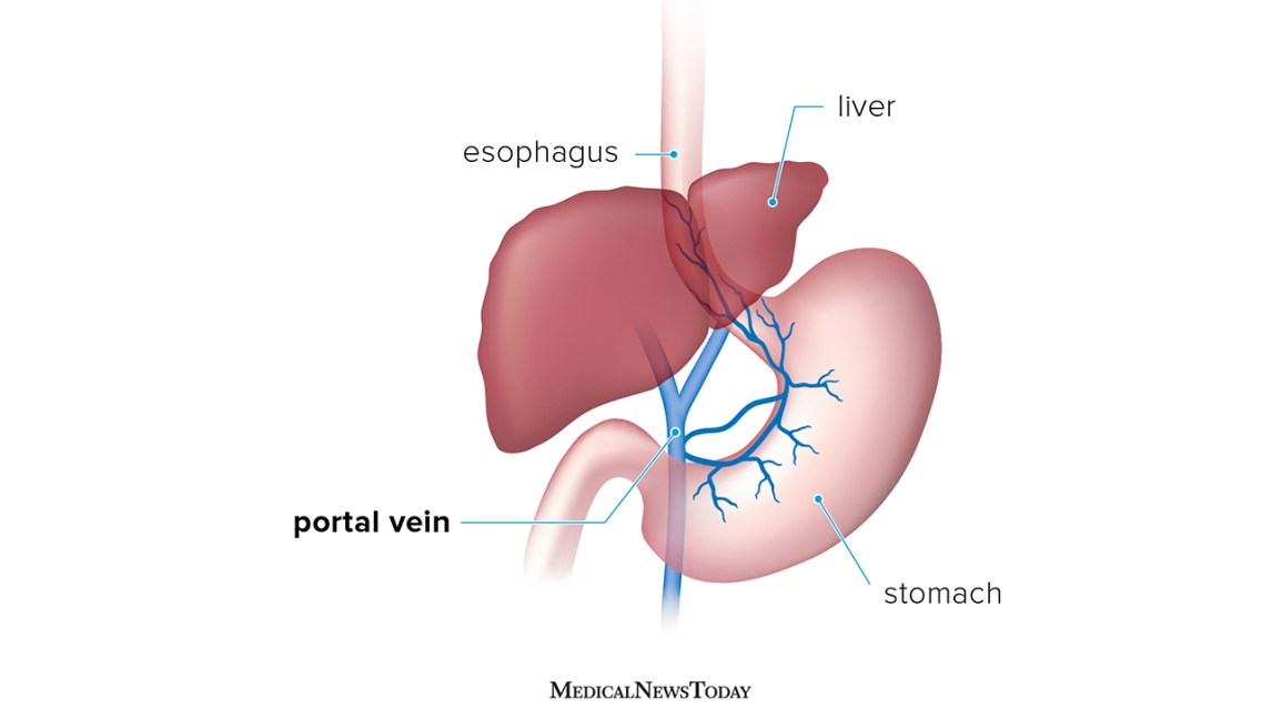 Portal hypertension: Symptoms, causes, and treatment