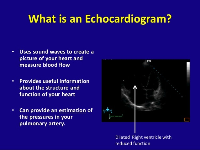 Pulmonary Arterial Hypertension Overview for Scleroderma Patients