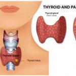 Thyroid Enlargement and Difficulty Swallowing in Fort worth, TX