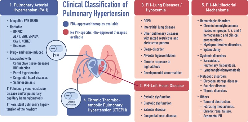 Emerging therapeutics in pulmonary hypertension. - Abstract - Europe PMC
